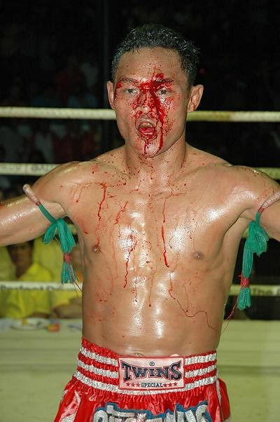 A-SAENCHAI-MUAY-THAI-FIGHT-CUTS1