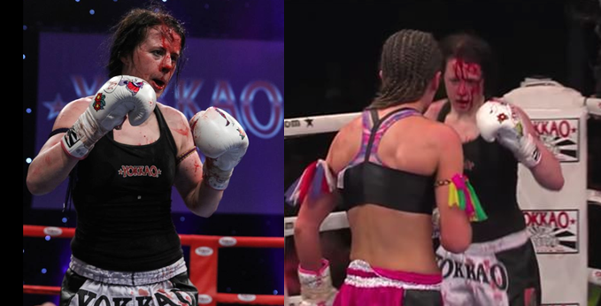 Tanya Merrett vs Bernise Alldise - Bloodied Face - cut 2