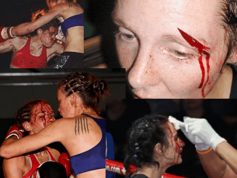The Bloodied Faces of Women - Women's War Face - New Beauty