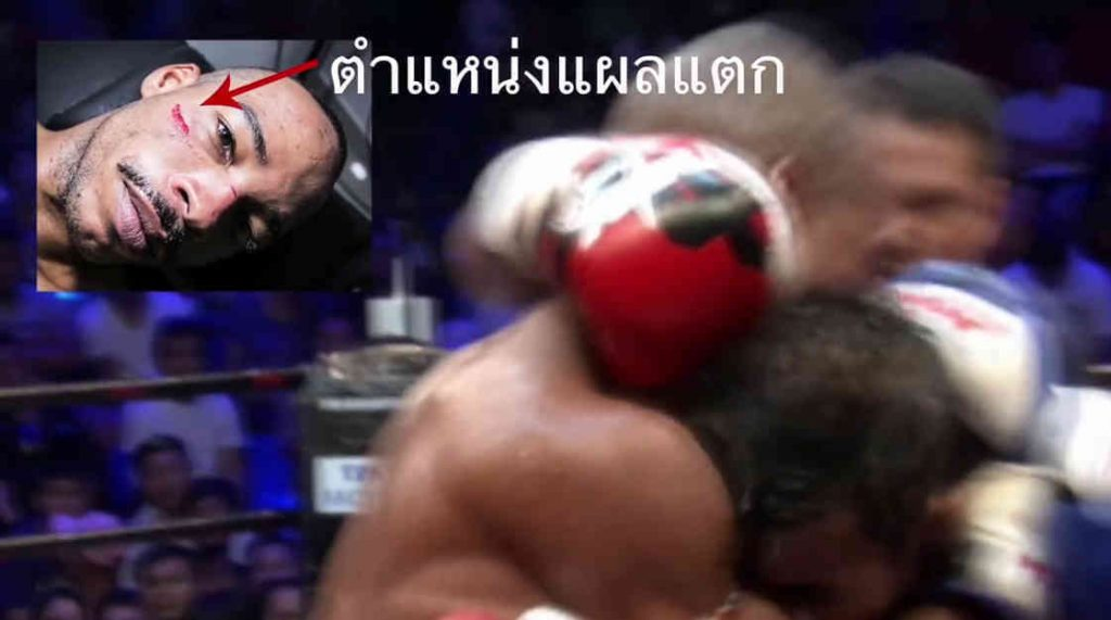 Ekapop Pleas for Justice - MAX Muay Thai 2-w1400