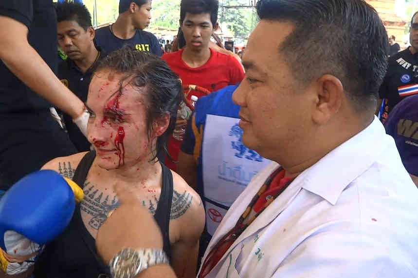 145 feminism bloody fight photo - muay Thai fight doctor-001
