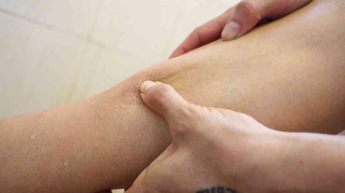 shin-treatment-muay-thai-damage-3-move-the-swelling