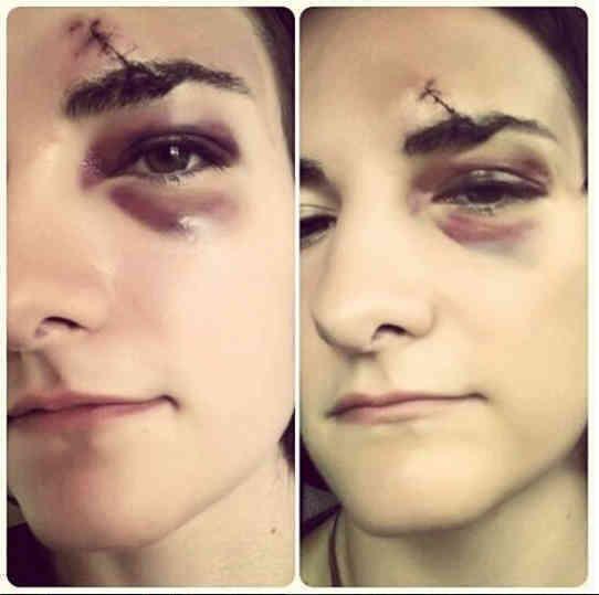 Nong Ying bruise