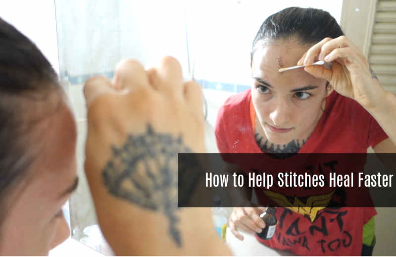 How to Help Stitches Heal Faster - healthcare