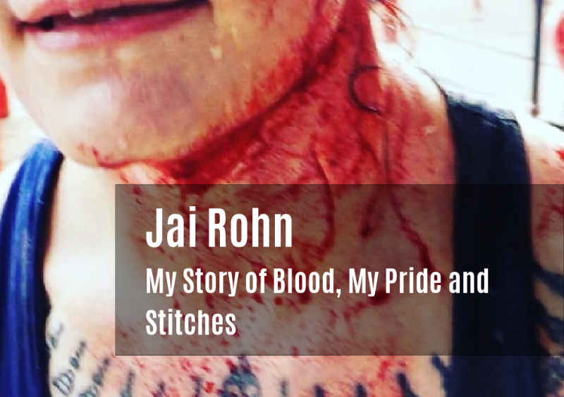 Jai Rohn - My Story of Blood, My Pride and Stitches