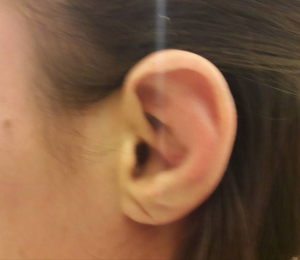 caulifloer ear
