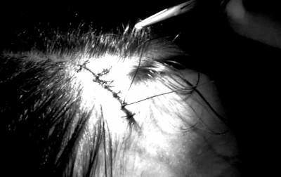 sylvie stitches